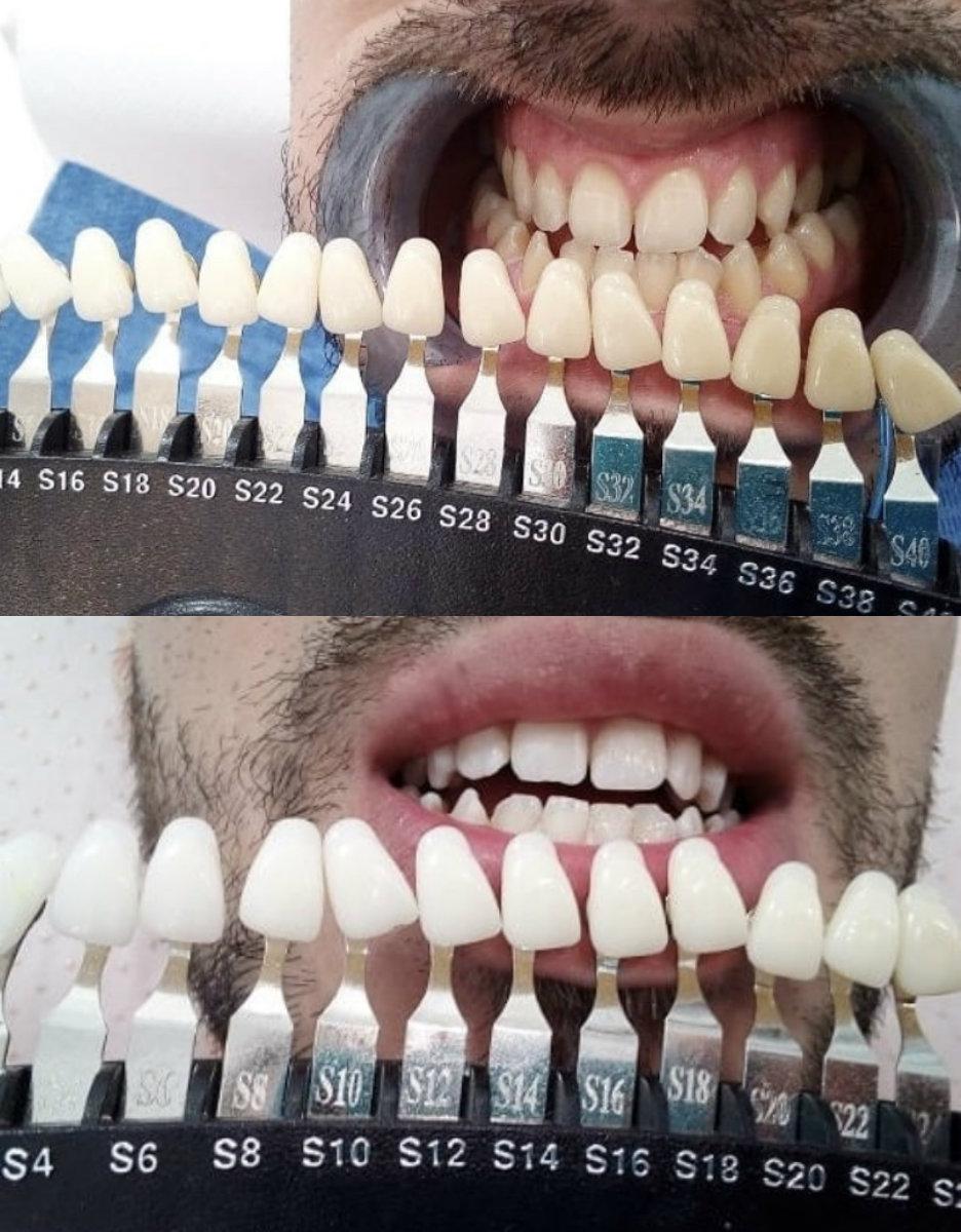 Avant-après blanchiment 5