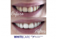 Blanchiment dentaire WHITECARE : consultez les photos avant après de nos clients